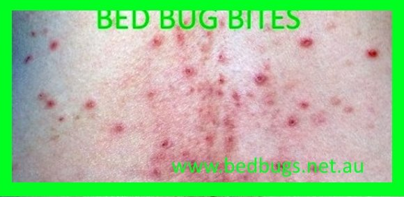 bed-bug-bites